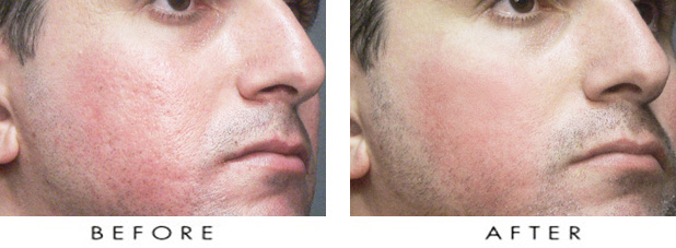 How to remove acne scars fast sad matters before and after acne scar results ccuart Choice Image