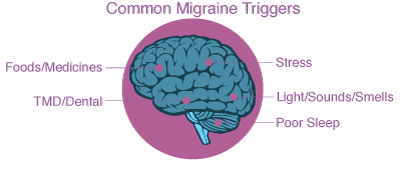 common migraine triggers