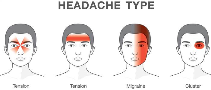 headache type diagram